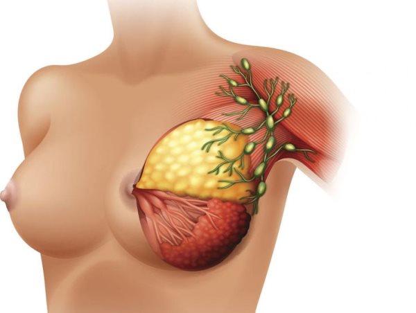 limfni cvorovi ispod pazuha
