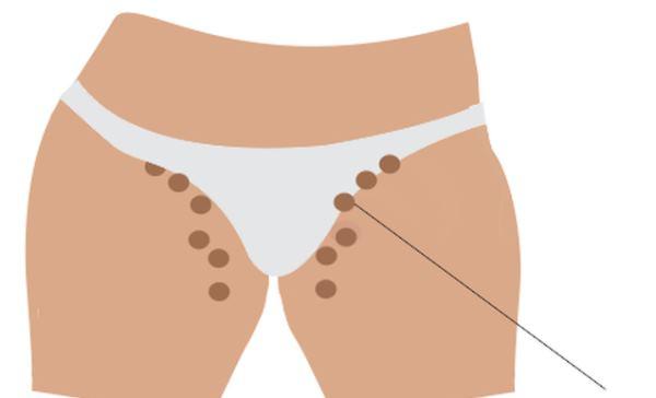 limfni cvorovi na preponi