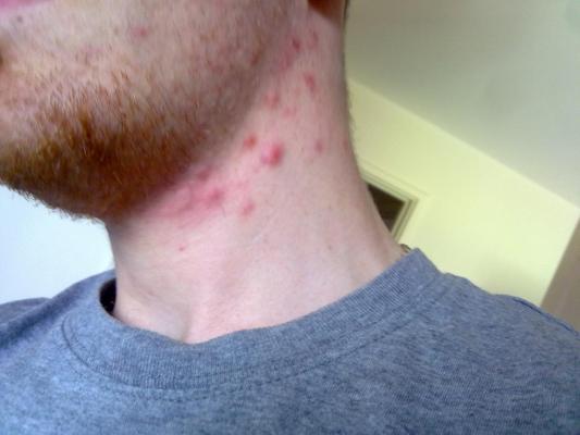 potkozne bubuljice na vratu