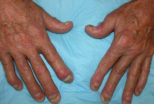 psorijaticni artritis lecenje