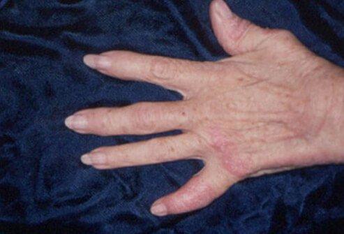 psorijaticni artritis simptomi