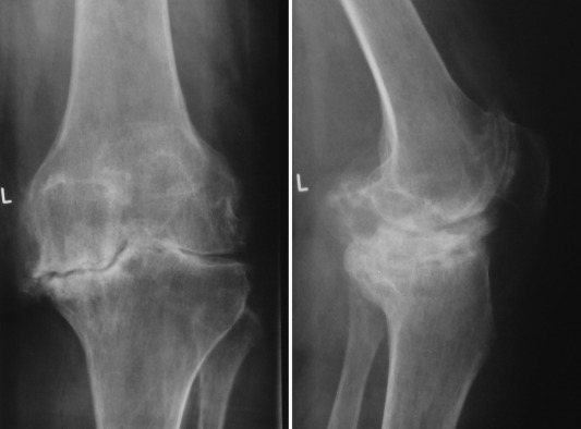 reuma u kolenima