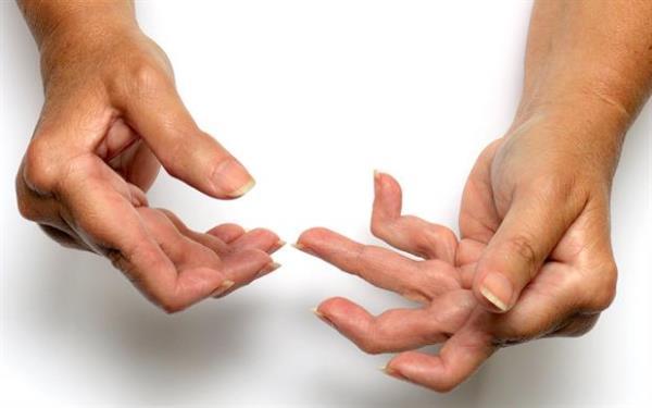 reuma u rukama
