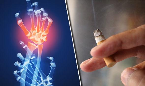 reumatoidni artritis uzrok