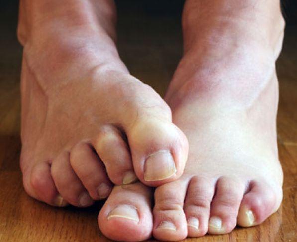 svrab nogu