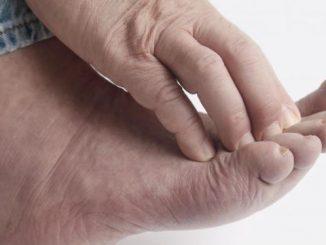 svrab stopala