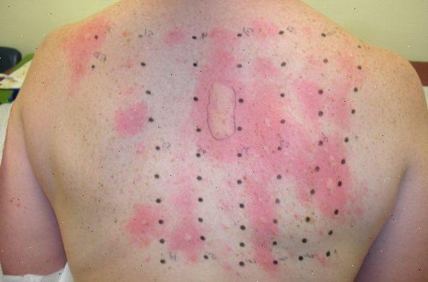 testiranje na alergije