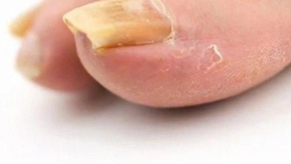 tvrdi nokti
