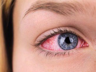 zapaljenje oka