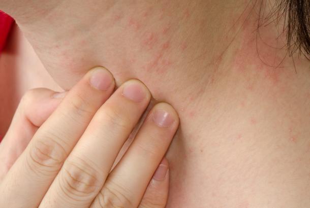 akne po vratu
