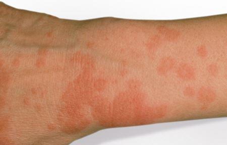 alergija na sunce zbog lekova