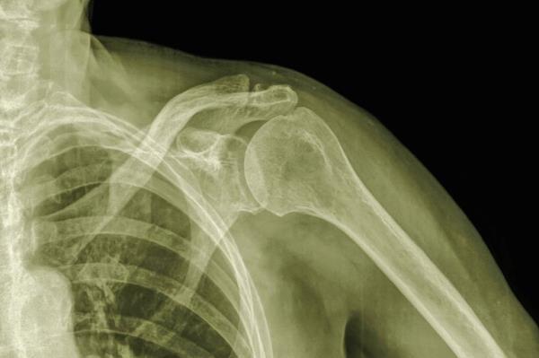 artroza ramena