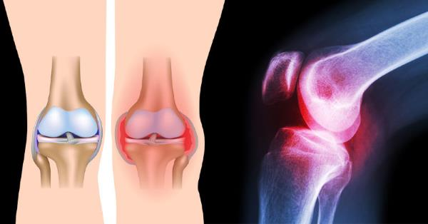 bol u kolenu pri savijanju