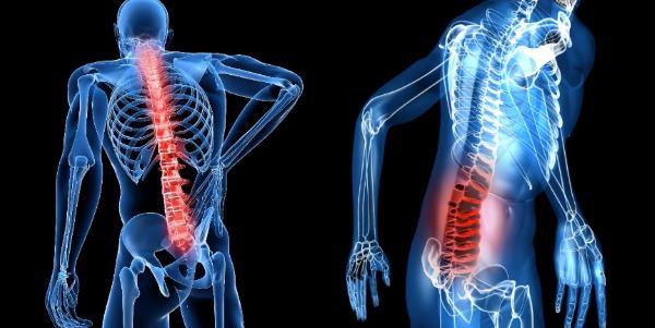 bol u ledjima sa desne strane