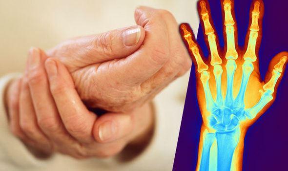 bolovi u zglobovima prstiju