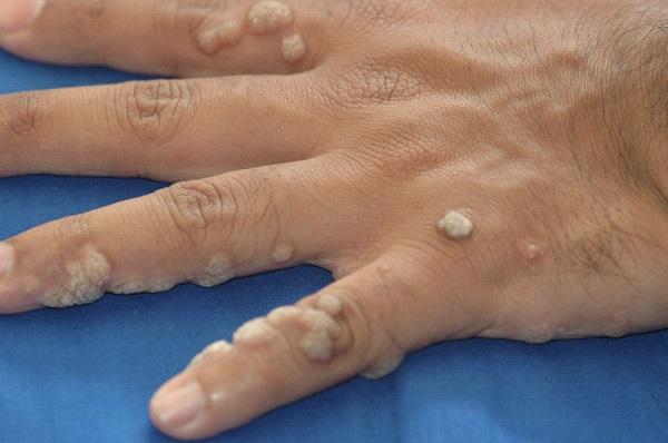 bradavice na prstima
