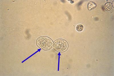 epitelne celije u urinu u trudnoci
