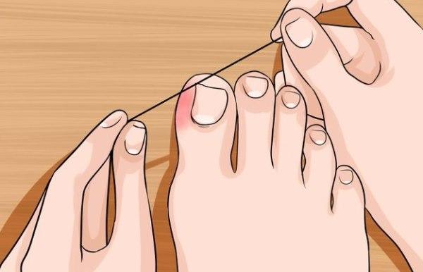 kako izvaditi nokat iz mesa