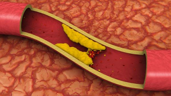 kako ocistiti krvne sudove