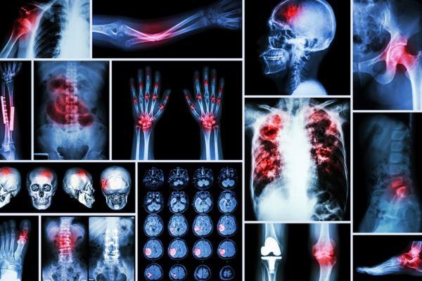 kako prepoznati rak kostiju