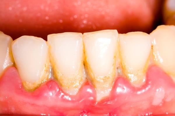 kamenac na zubima1