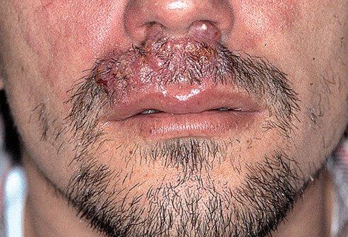 lisaj na bradi