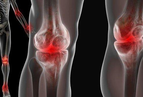 lupus bolest kostiju