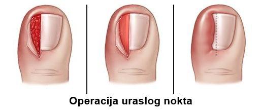 operacija uraslog nokta