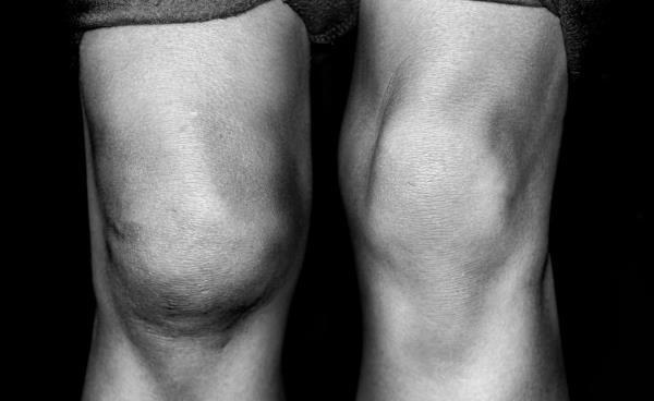 otok kolena i bol