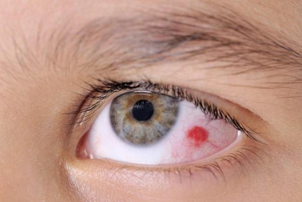 puknut kapilar u oku