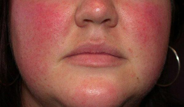 rozacea simptomi