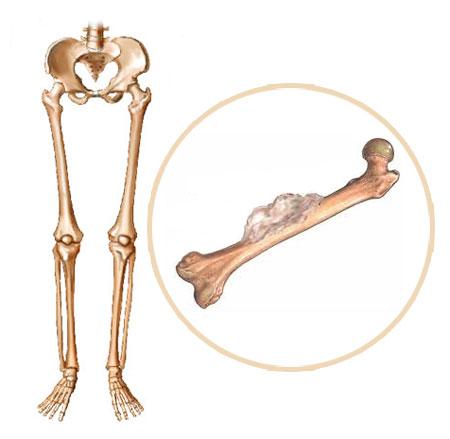 sekundarni rak kosti
