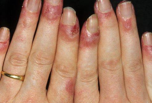 simptomi lupusa