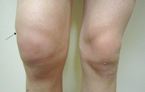 tecnost u kolenu