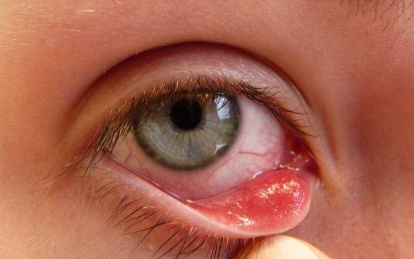 unutrašnji čmičak u oku