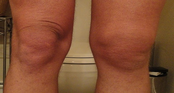 voda u kolenu uzrok