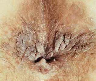 analne bradavice