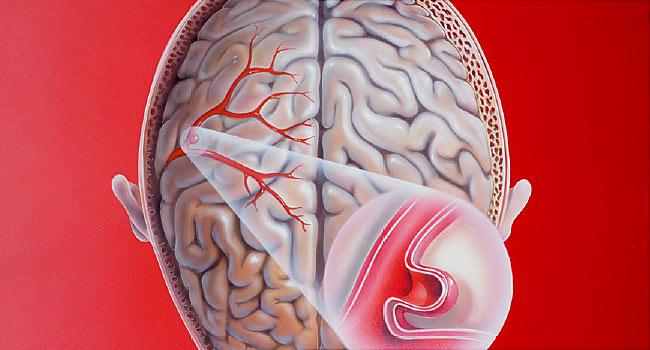 aneurizma u mozgu
