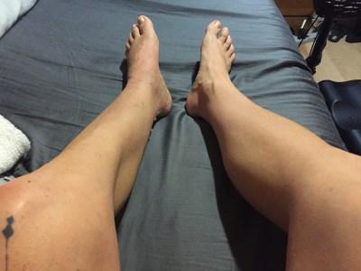 atrofija misica nogu