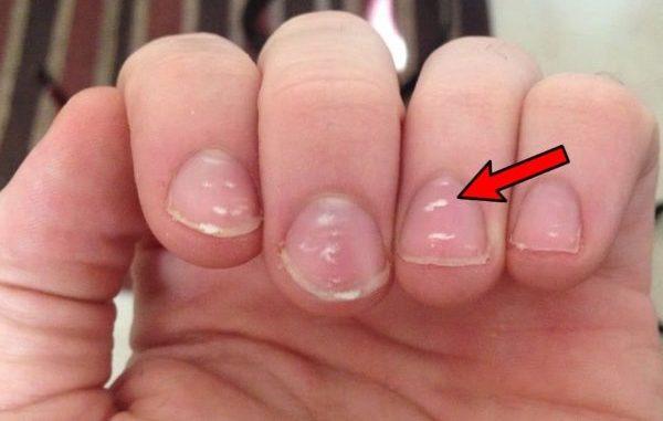 bele fleke na noktima