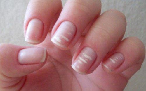 bele mrlje na noktima