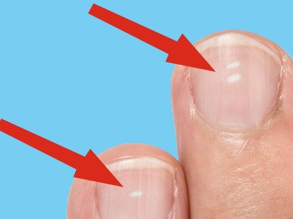 bele tacke na noktima
