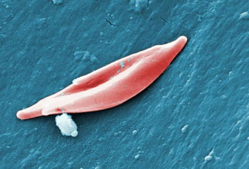bolest srpastih celija
