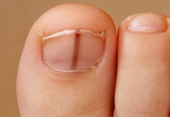 crna crta na noktu