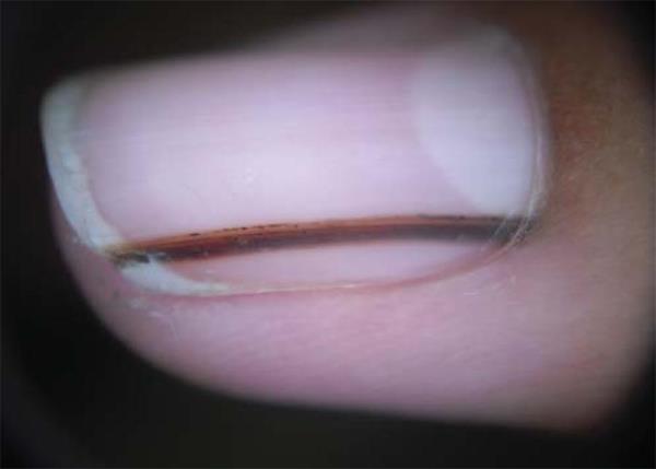 crna linija na noktu melanom