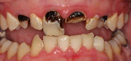 gangrena zuba simptomi