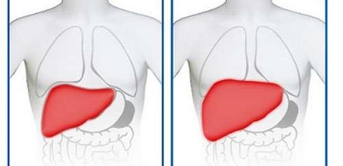 hepatomegalija