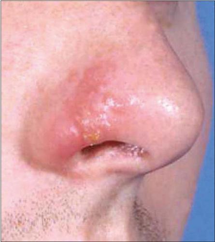 herpes na nosu