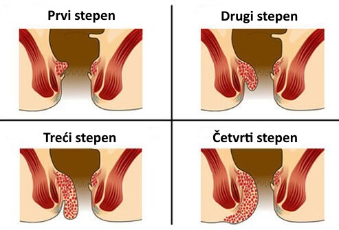 kako izgledaju hemoroidi