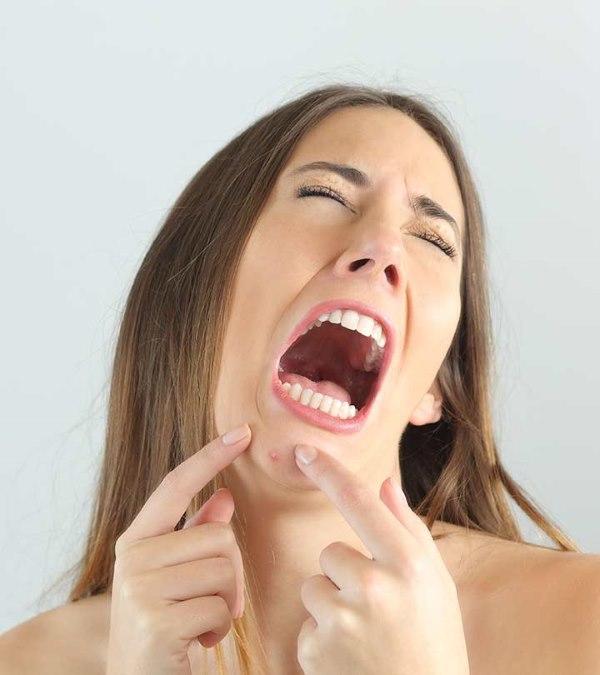 kako se resiti bubuljica na bradi